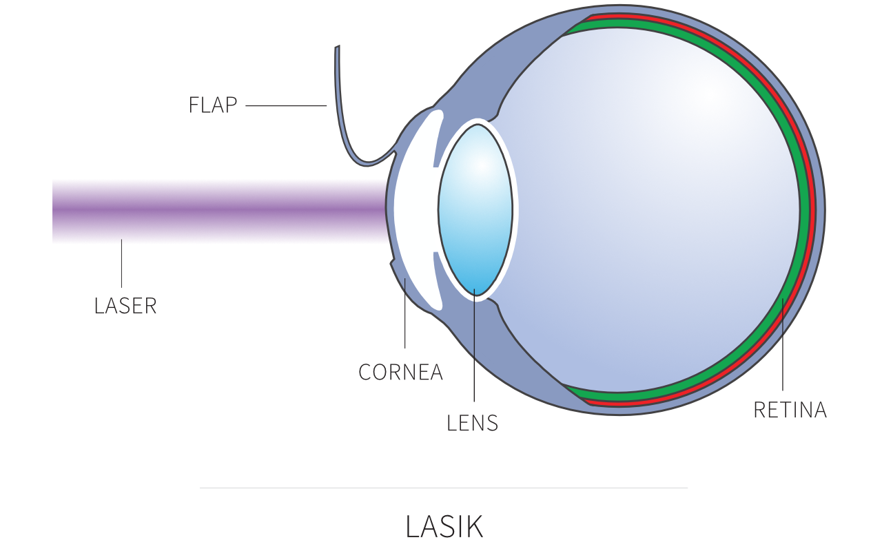 Diagram showing LASIK laser eye surgery
